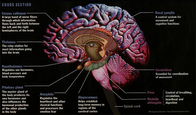black-brain
